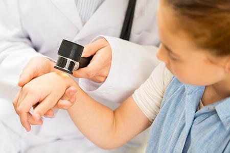 Muss man mit Dellwarzen zum Arzt?